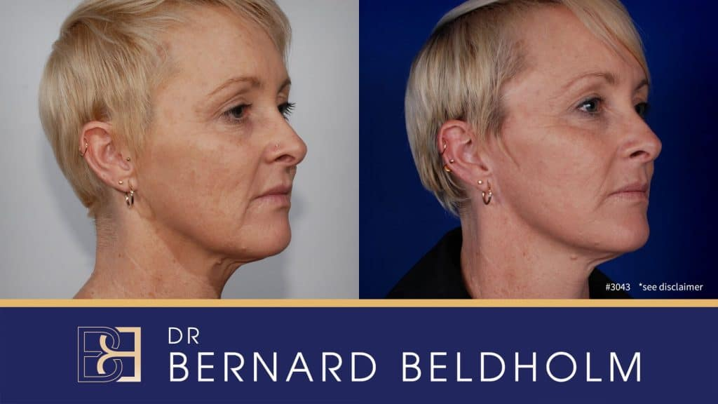 Patient 3043 Facelift and Neck Lift
