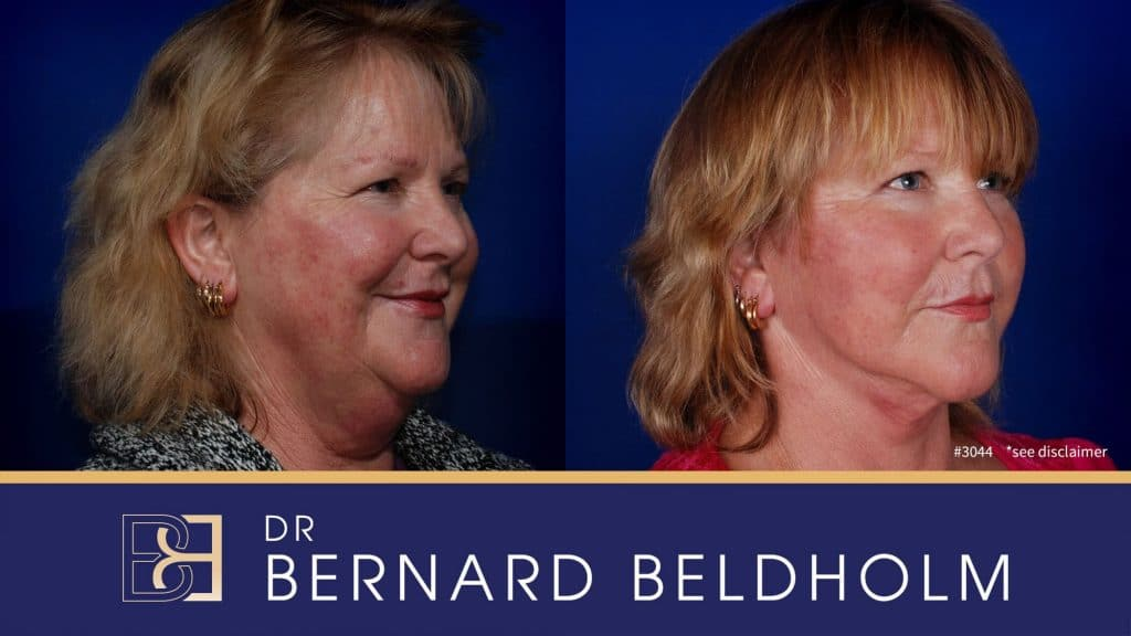 Patient 3044 Facelift and Neck Lift