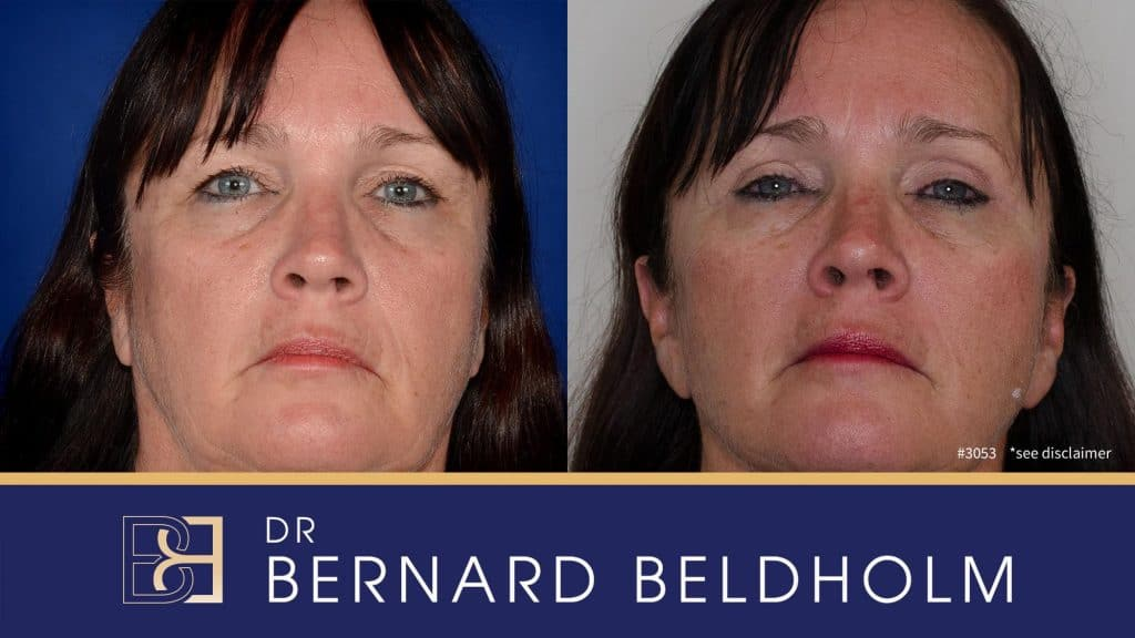 Patient 3053 Blepharoplasty