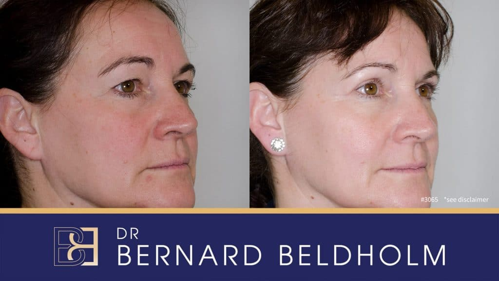 Patient 3065 Blepharoplasty