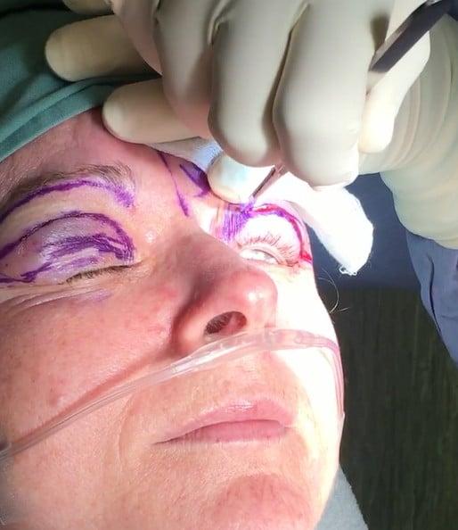 Blepharoplasty Surgery