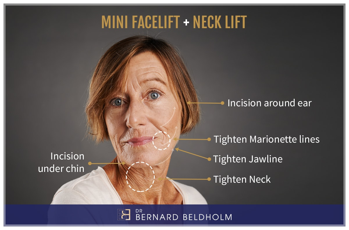 Dr Bernard Beldholm Mini Facelift Neck Lift Explanatory Image