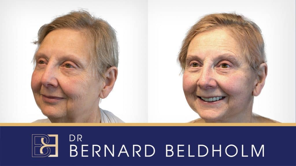 Patient 2019-10000 Facelift and Neck Lift