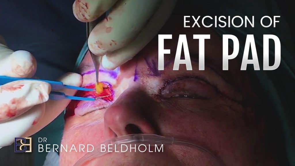 Patient 4003 Excision of Fat Pad by Dr Beldholm