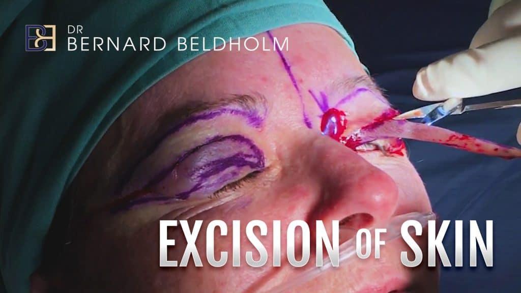 Patient 4003 Excision of Skin by Dr Beldholm
