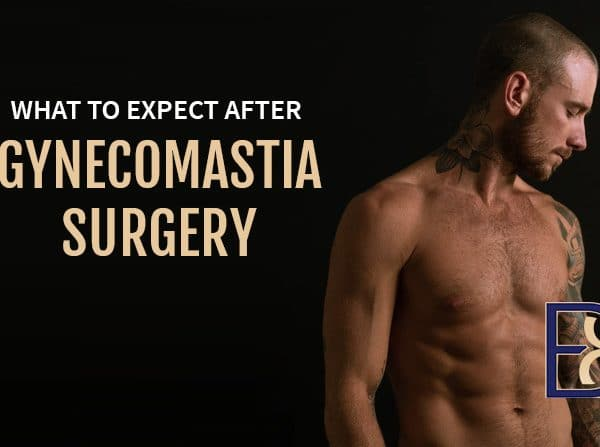 What to expect after gynaecomastia surgery