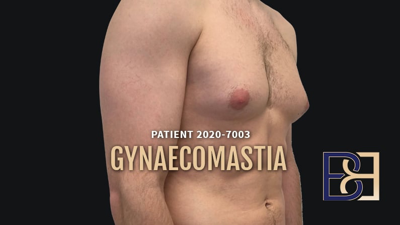 Gynaecomastia Surgery