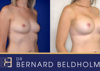 Patient 3032 Breast Augmentation