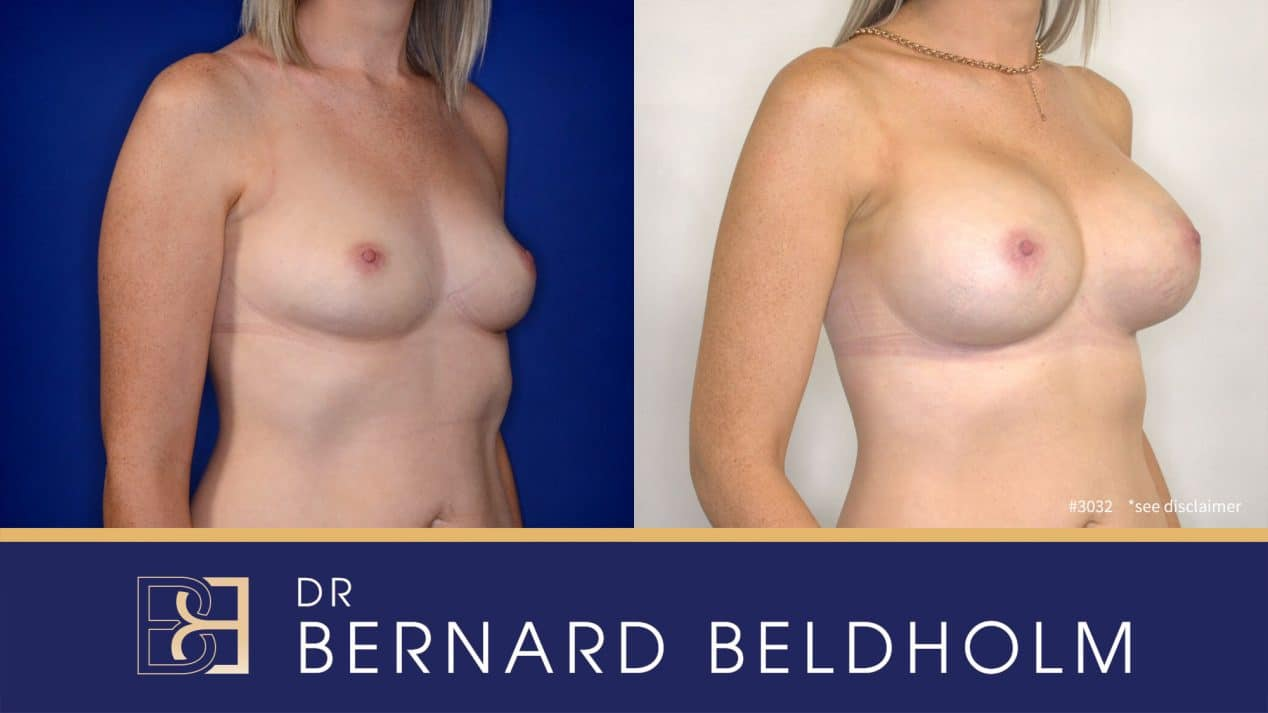 Patient 3032 Breast Augmentation Post Pregnancy