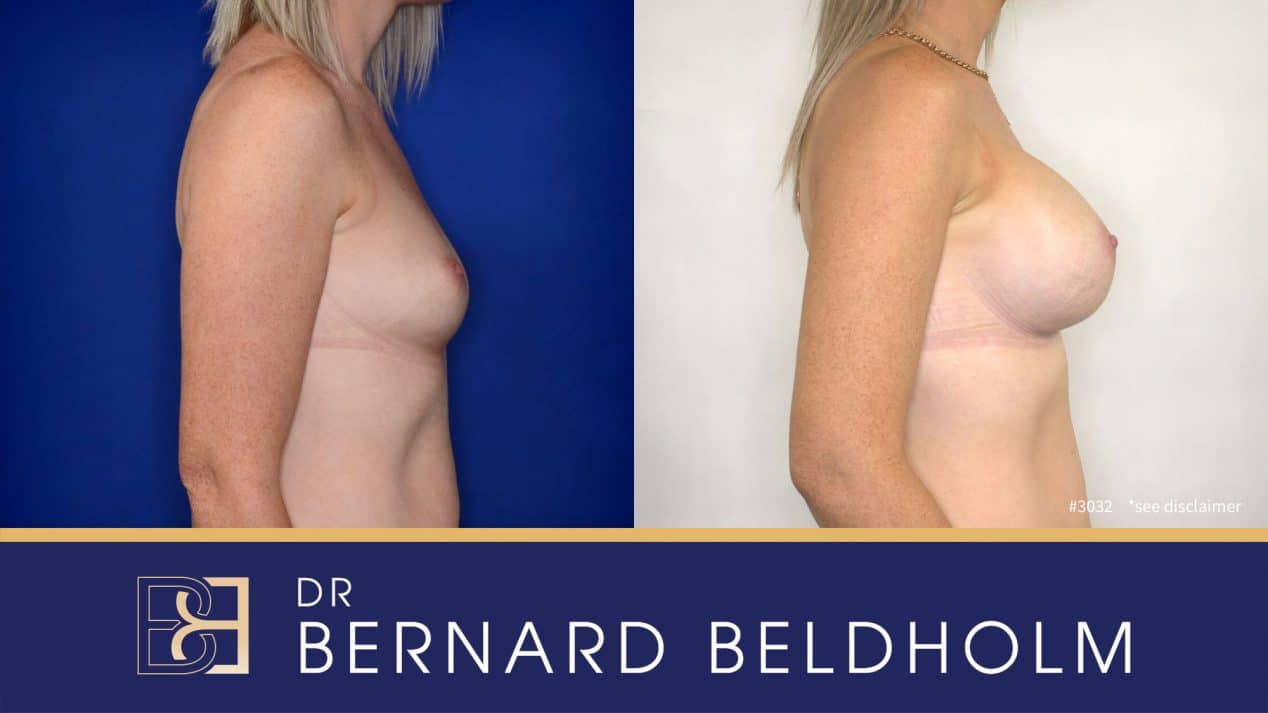 Patient 3032 Breast Augmentation Before and After