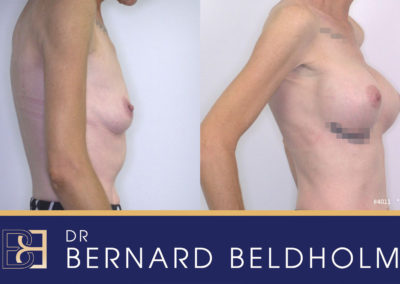 Patient 4011 Breast Augmentation