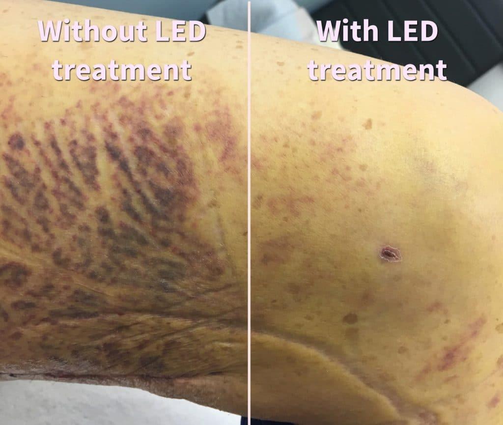 Breast Augmentation LED Treatment