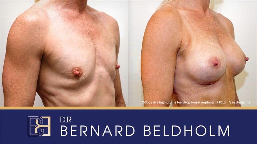 Patient 1013 Breast Augmentation