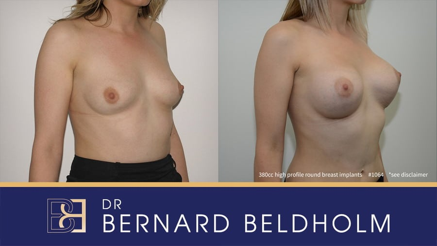 Patient 1064 Breast Augmentation