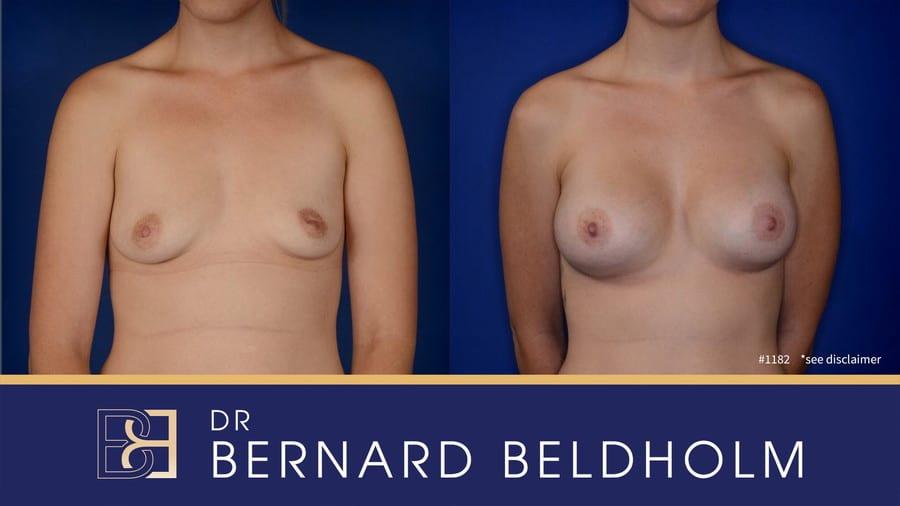 Patient 1182 Breast Augmentation