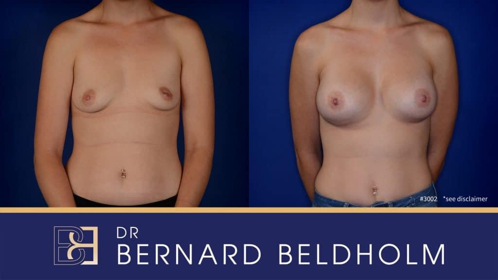 Patient 3002 Breast Augmentation