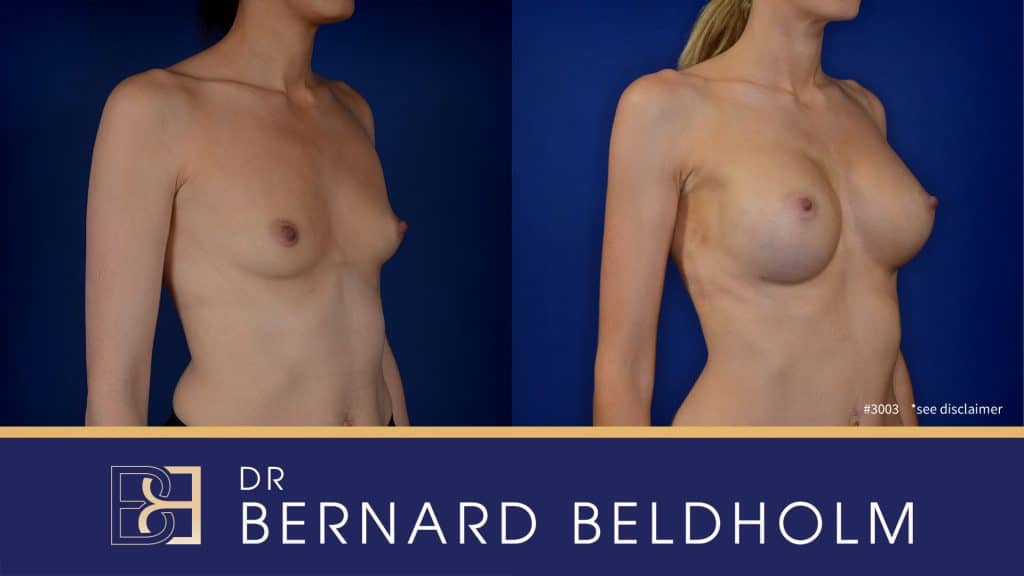 Patient 3003 Breast Augmentation