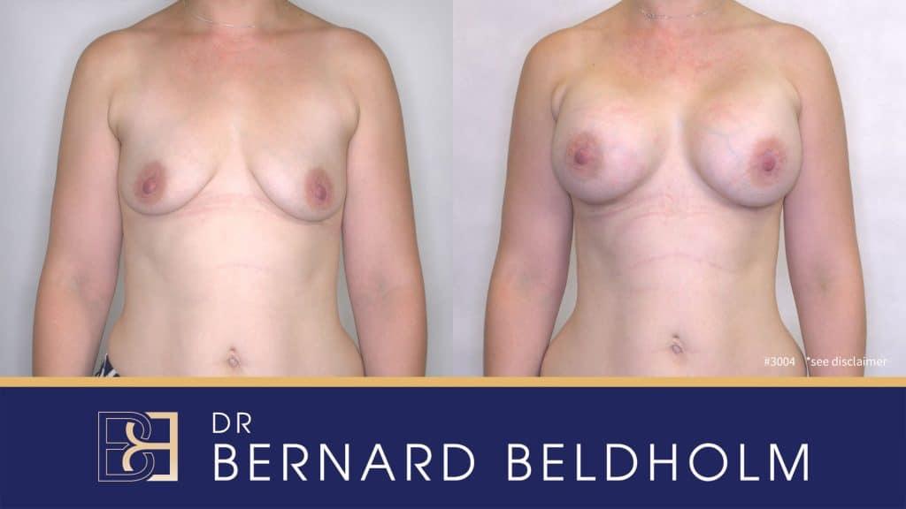 Patient 3004 Breast Augmentation