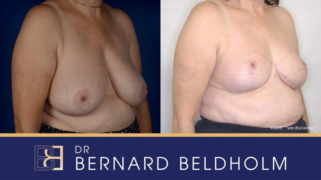 Patient 3009 Breast Augmentation