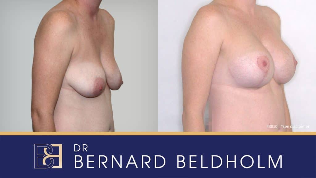 Patient 3010 Breast Augmentation