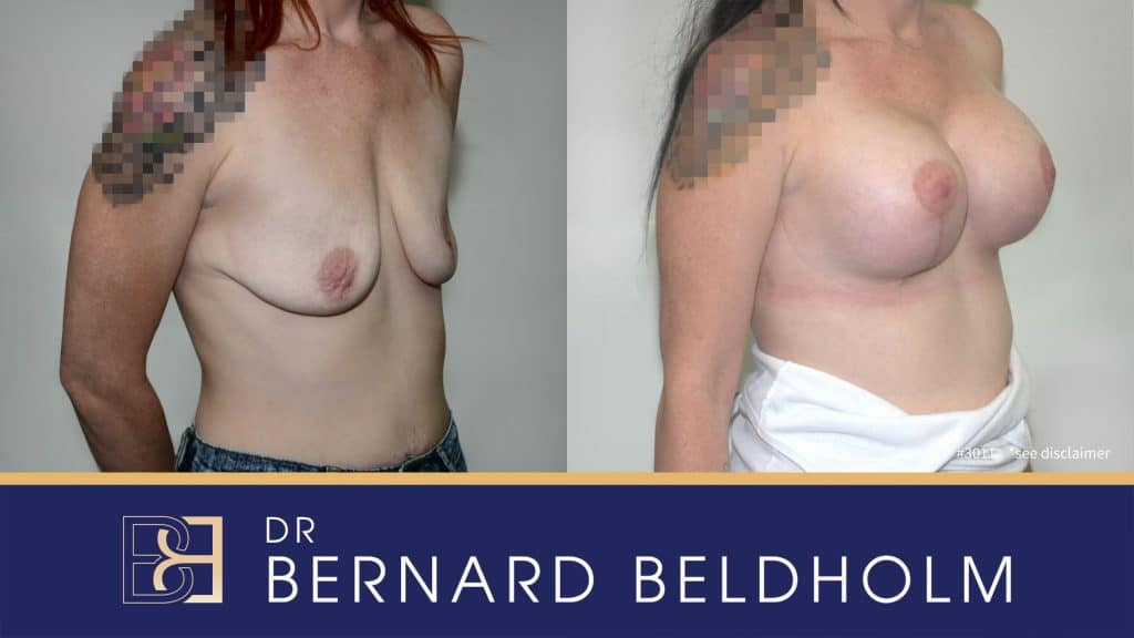 Patient 3011 Breast Augmentation