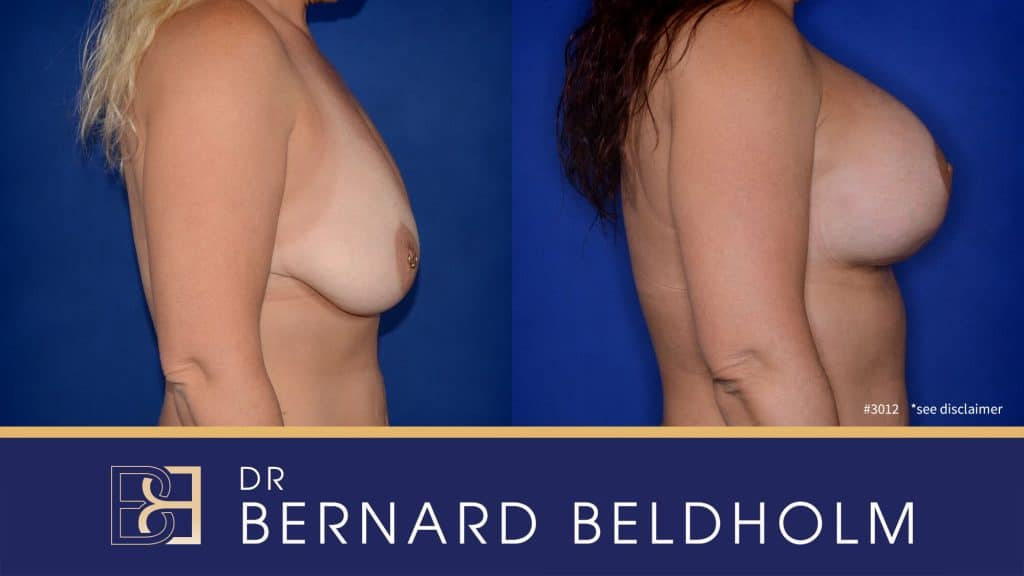 Patient 3012 Breast Augmentation and Lift