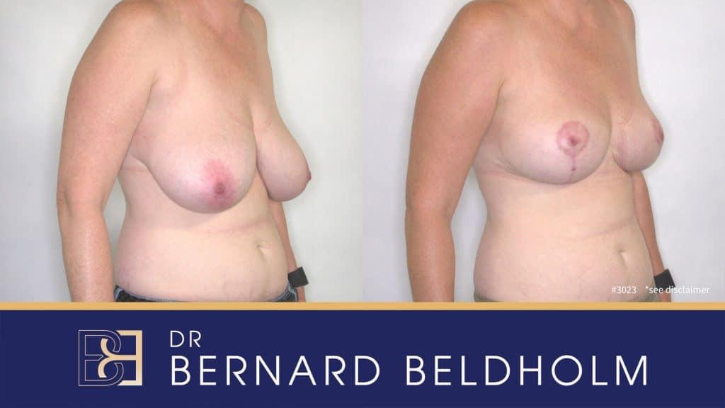 Patient 3023 Breast Augmentation
