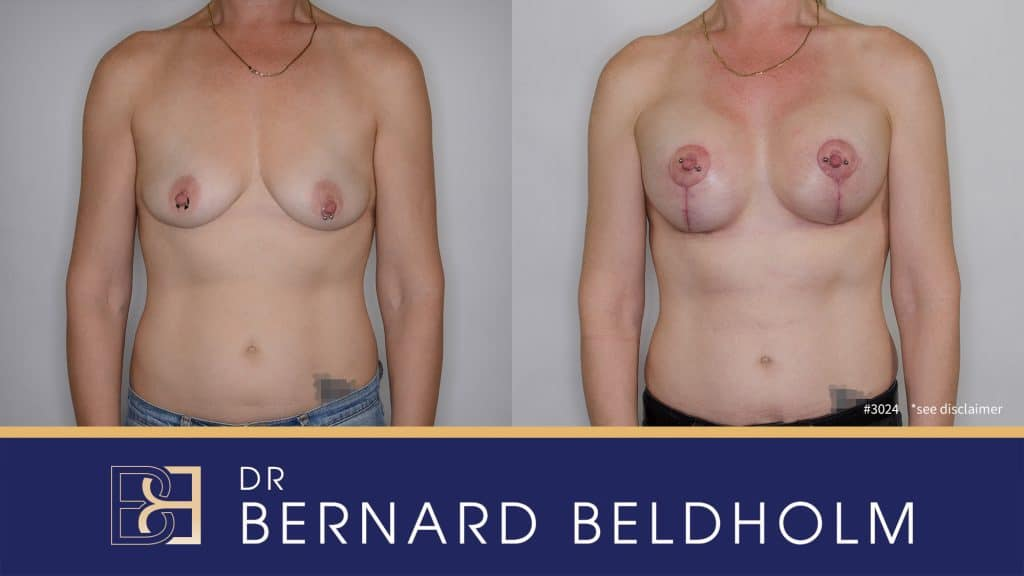Patient 3024 Breast Augmentation