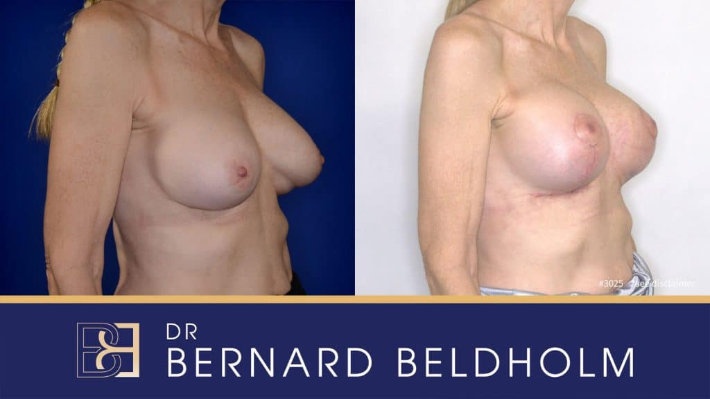 Patient 3025 Breast Augmentation