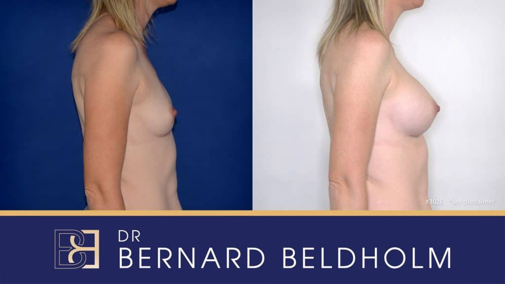 Patient 3026 Breast Augmentation
