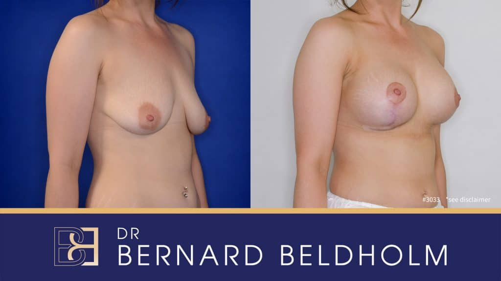 Patient 3033 Breast Augmentation