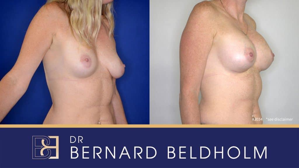 Patient 3034 Breast Augmentation