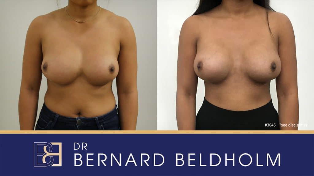 Patient 3045 Breast Augmentation
