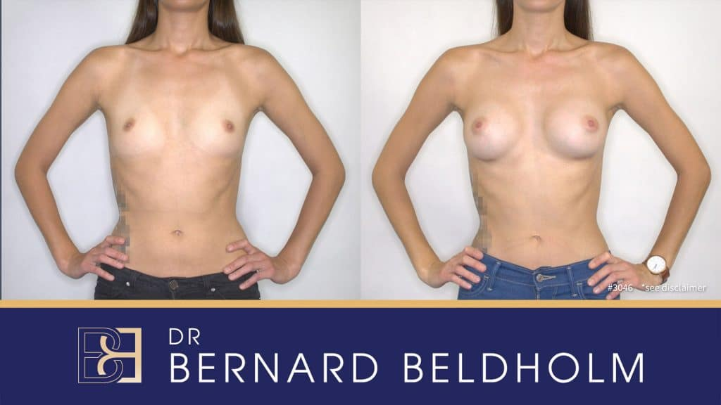 Patient 3046 Breast Augmentation