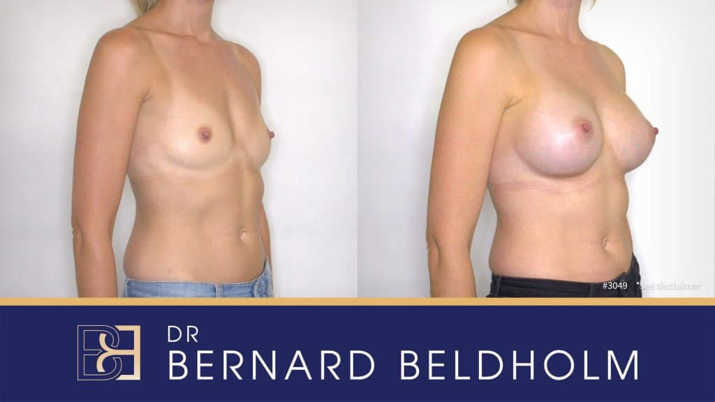 Patient 3049 Breast Augmentation