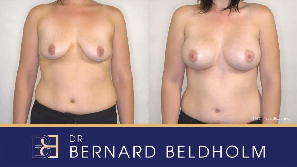 Patient 3051 Breast Augmentation