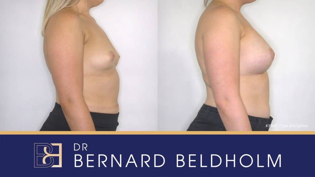 Patient 3064 Breast Augmentation
