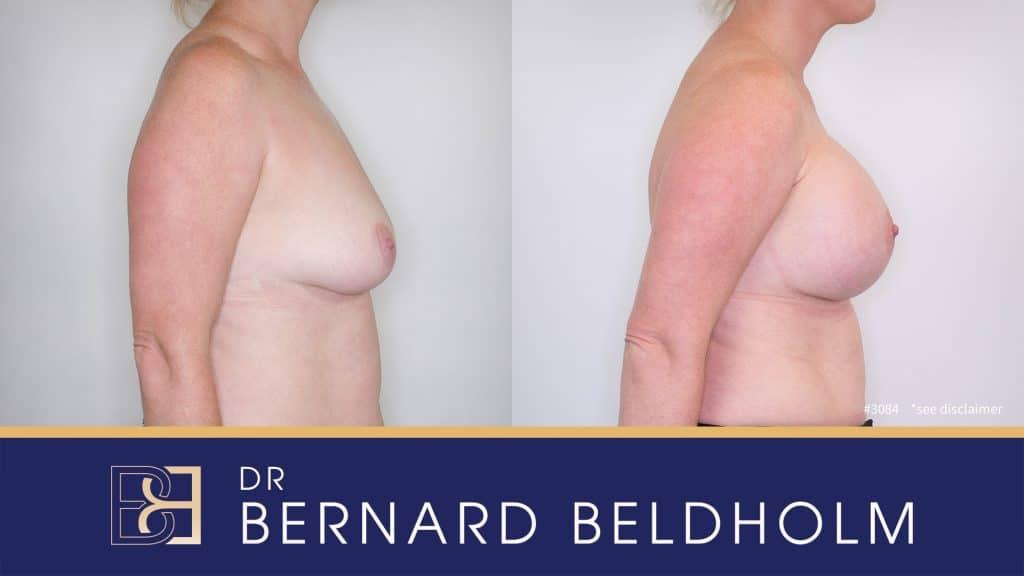 Patient 3084 Breast Augmentation