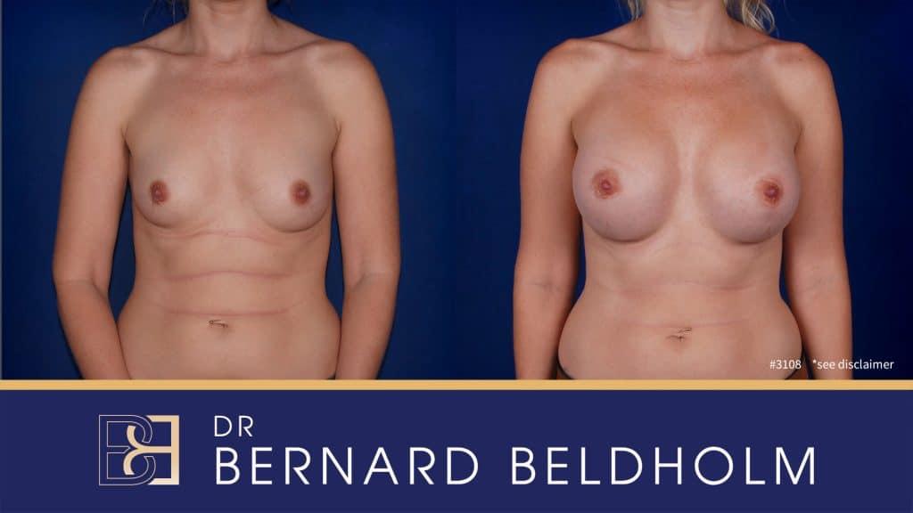 Patient 3108 Breast Augmentation