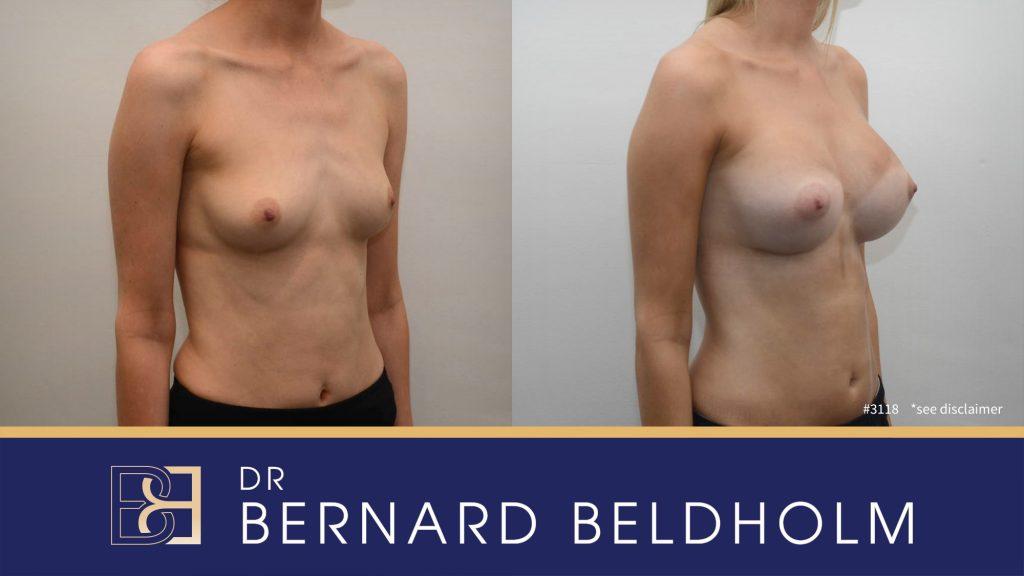 Patient 3118 Breast Augmentation