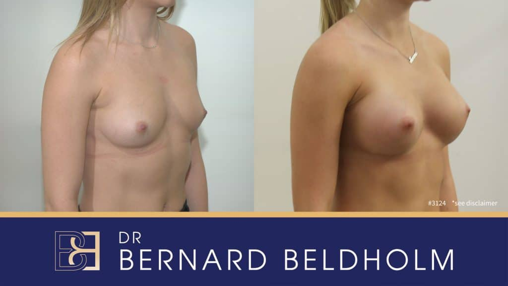 Patient 3124 Breast Augmentation