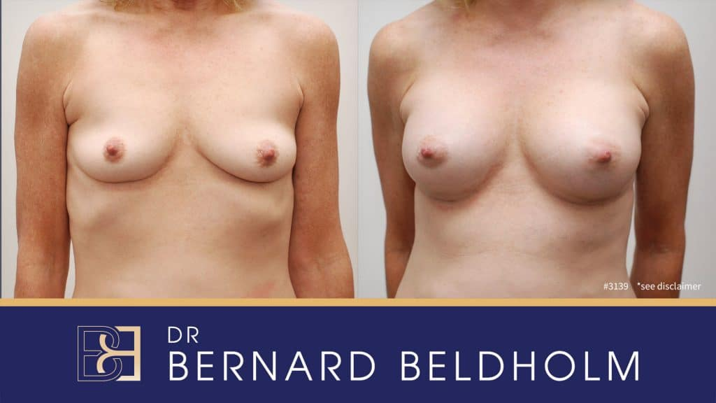 Patient 3139 Breast Augmentation