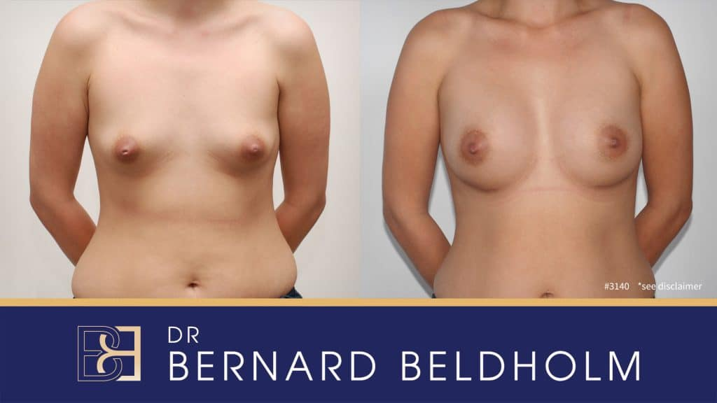 Patient 3140 Breast Augmentation