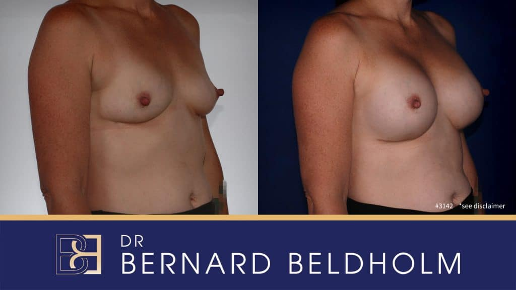 Patient 3142 Breast Augmentation