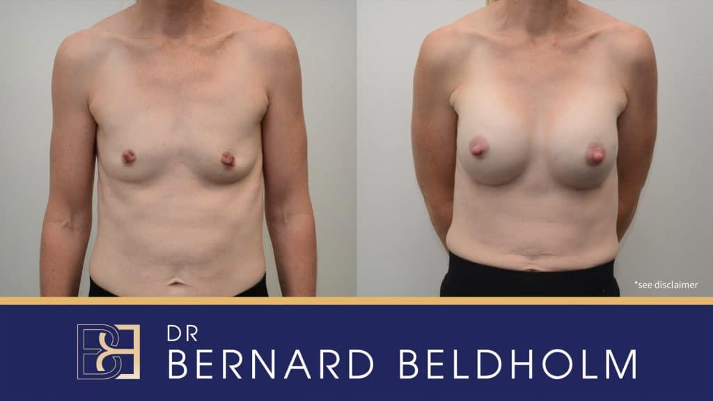 Patient 3145 Breast Augmentation