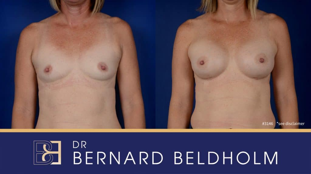 Patient 3146 Breast Augmentation