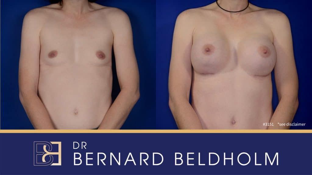 Patient 3151 Breast Augmentation