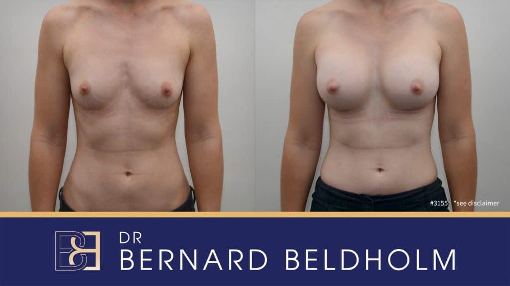 Patient 3155 Breast Augmentation