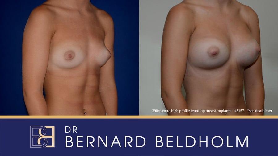 Patient 3157 Breast Augmentation