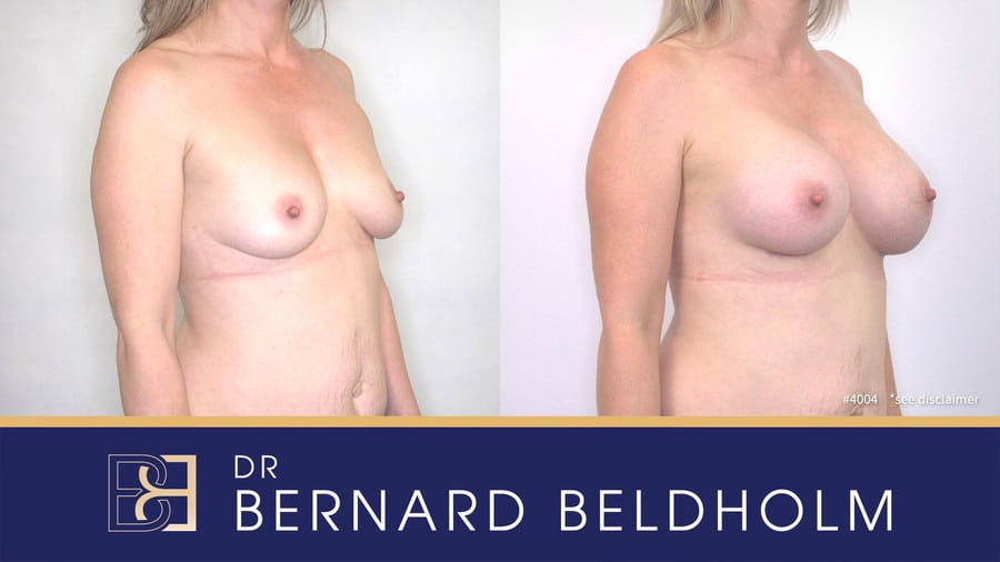 Patient 4004 Breast Augmentation